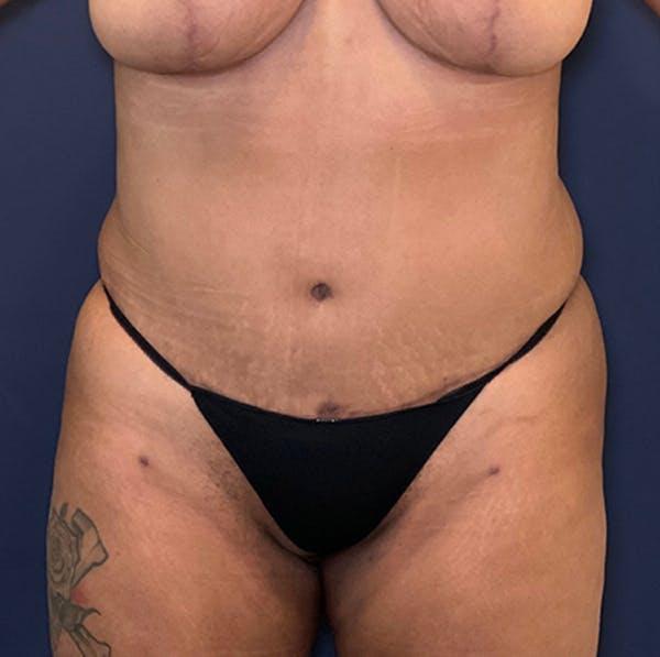 Tummy Tuck (Abdominoplasty) Gallery - Patient 18114256 - Image 2