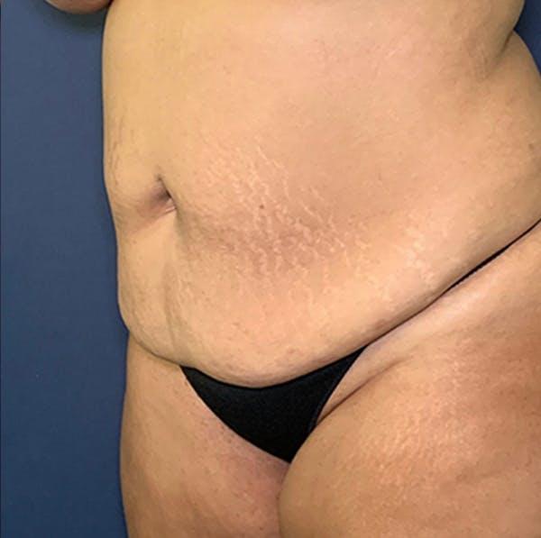 Tummy Tuck (Abdominoplasty) Gallery - Patient 18114256 - Image 3