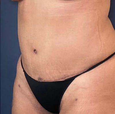 Tummy Tuck (Abdominoplasty) Gallery - Patient 18114256 - Image 4