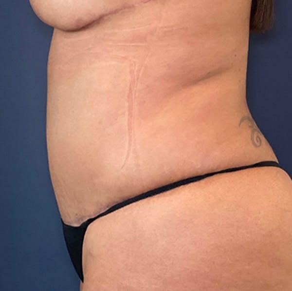 Tummy Tuck (Abdominoplasty) Gallery - Patient 18114256 - Image 6