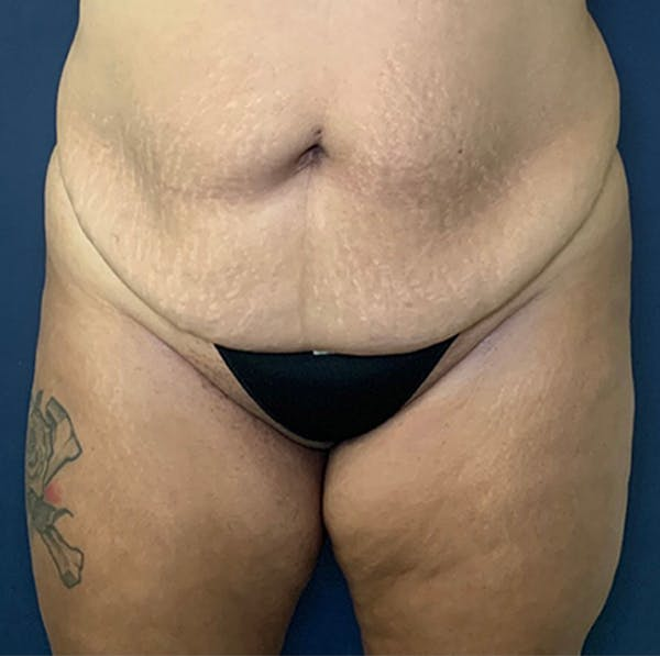 Liposuction Gallery - Patient 18114264 - Image 1
