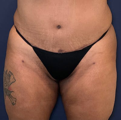 Liposuction Gallery - Patient 18114264 - Image 2