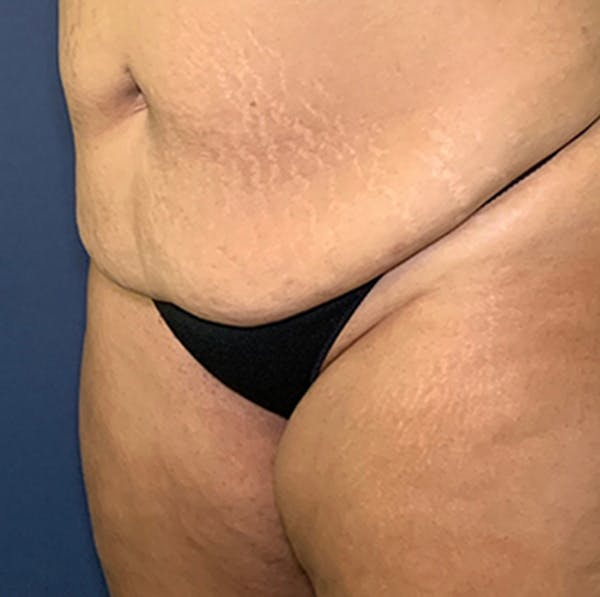 Liposuction Gallery - Patient 18114264 - Image 3