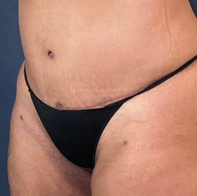 Liposuction Gallery - Patient 18114264 - Image 4