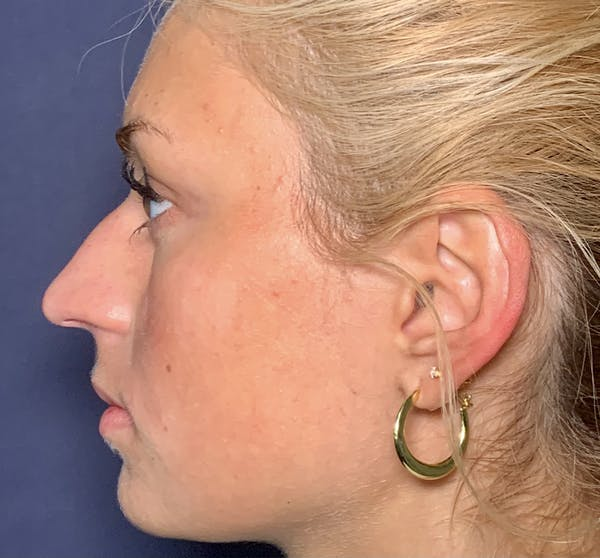 Liquid Rhinoplasty Gallery - Patient 41037003 - Image 1