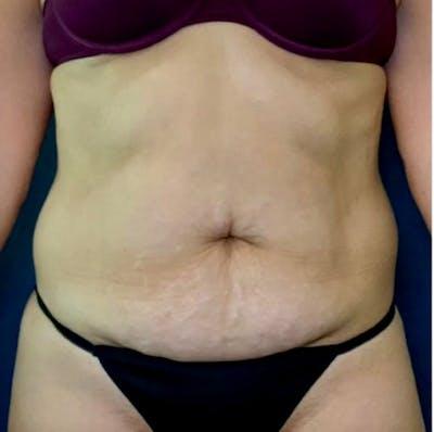 Tummy Tuck (Abdominoplasty) Gallery - Patient 41594257 - Image 1