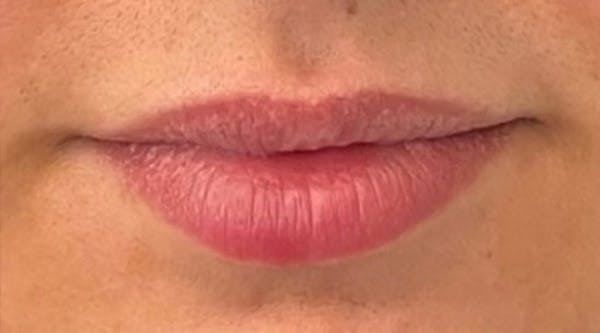 Lip Augmentation Gallery - Patient 43421764 - Image 1