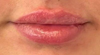 Lip Augmentation Gallery - Patient 43421764 - Image 2