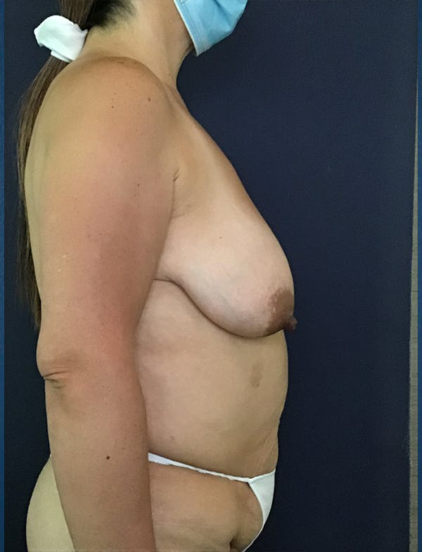 Mommy Makeover Gallery - Patient 50320694 - Image 1