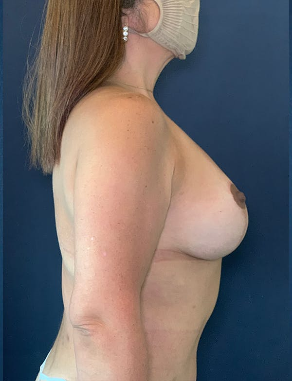 Mommy Makeover Gallery - Patient 50320694 - Image 2