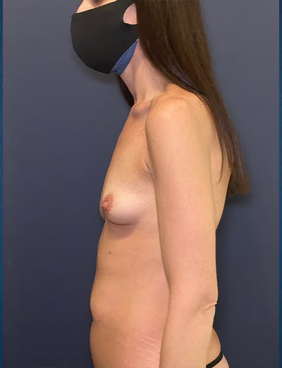 Mommy Makeover Gallery - Patient 50320695 - Image 1