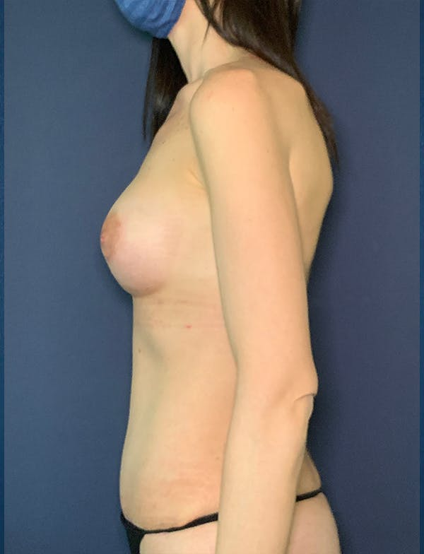 Mommy Makeover Gallery - Patient 50320695 - Image 2