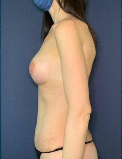 Tummy Tuck (Abdominoplasty) Gallery - Patient 49275783 - Image 2
