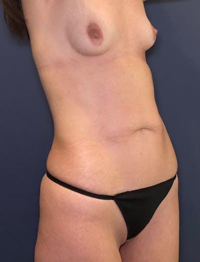 Tummy Tuck (Abdominoplasty) Gallery - Patient 51842175 - Image 1