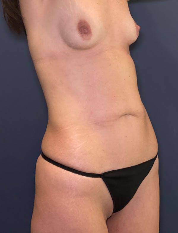 Tummy Tuck (Abdominoplasty) Gallery - Patient 49275783 - Image 3