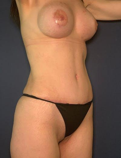 Tummy Tuck (Abdominoplasty) Gallery - Patient 49275783 - Image 4