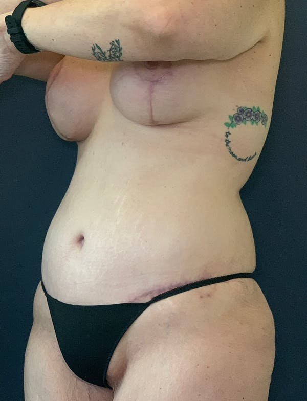 Mommy Makeover Gallery - Patient 50320696 - Image 2
