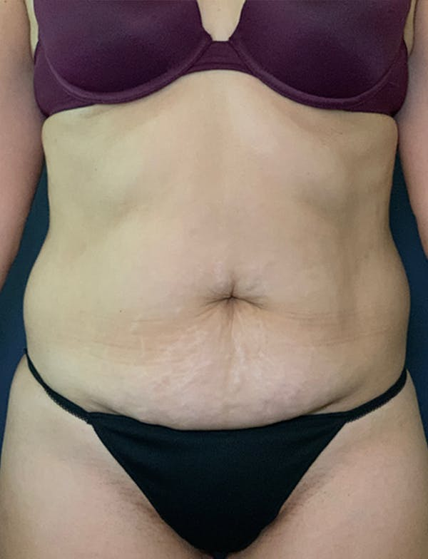 Mommy Makeover Gallery - Patient 50320697 - Image 1