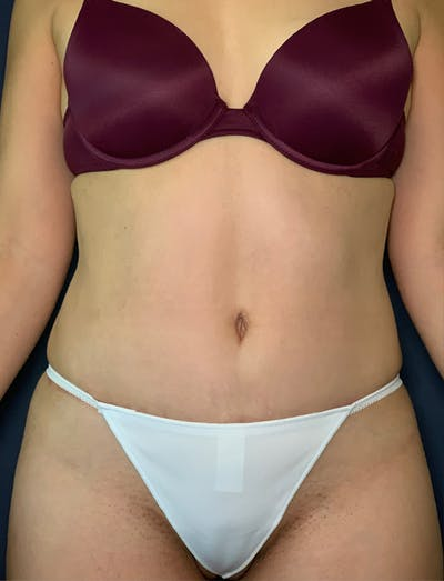 Mommy Makeover Gallery - Patient 50320697 - Image 2