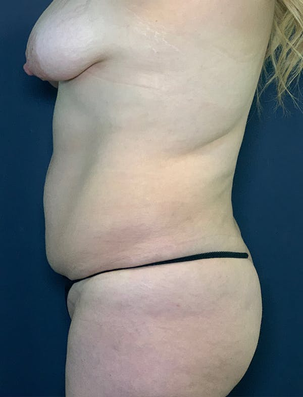 Mommy Makeover Gallery - Patient 50320698 - Image 1