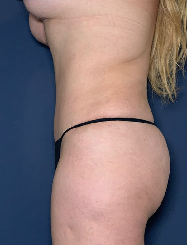 Mommy Makeover Gallery - Patient 50320698 - Image 2