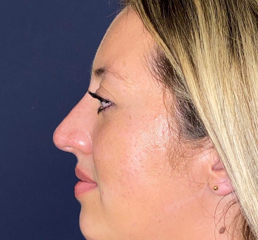 Liquid Rhinoplasty Gallery - Patient 50726636 - Image 2