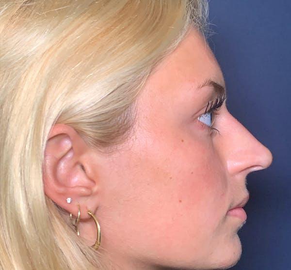 Liquid Rhinoplasty Gallery - Patient 41037003 - Image 4