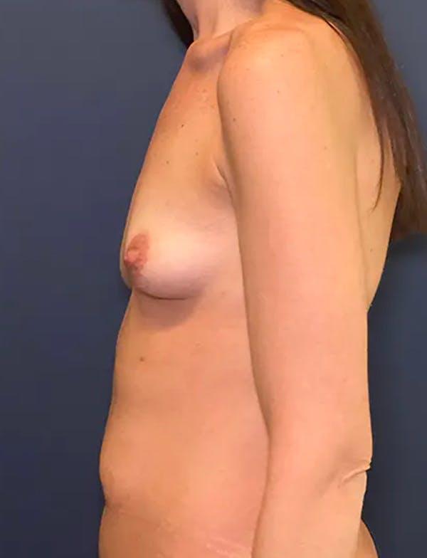 Tummy Tuck (Abdominoplasty) Gallery - Patient 51842175 - Image 3