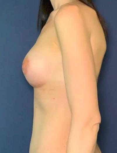 Tummy Tuck (Abdominoplasty) Gallery - Patient 51842175 - Image 4