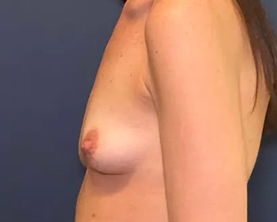 Breast Augmentation Gallery - Patient 50726672 - Image 1