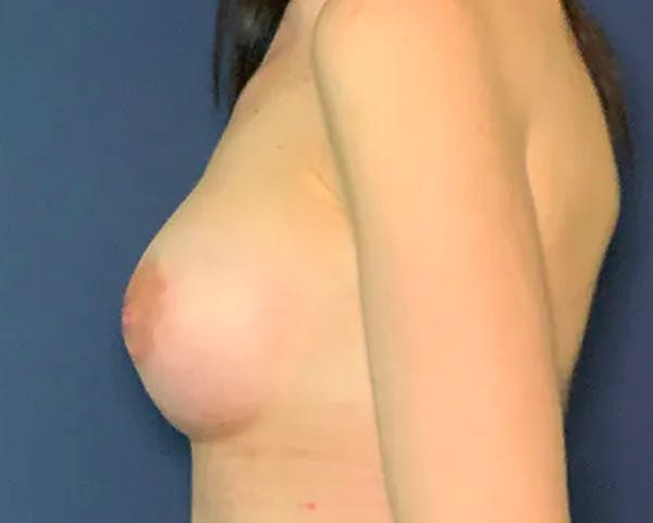 Breast Augmentation Gallery - Patient 50726672 - Image 2