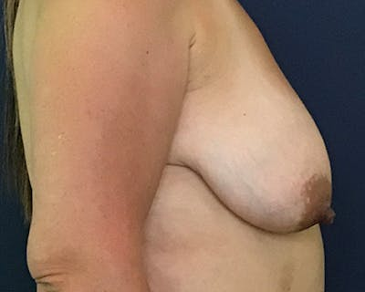 Breast Lift with Fat Grafting Gallery - Patient 51682892 - Image 1