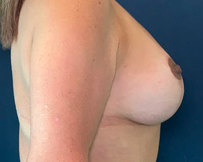 Breast Lift with Fat Grafting Gallery - Patient 51682892 - Image 2