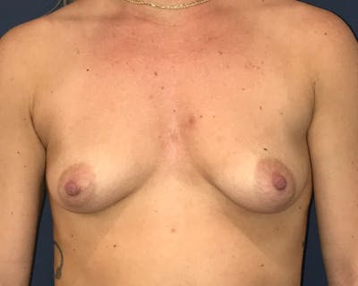 Breast Augmentation Gallery - Patient 51852603 - Image 1