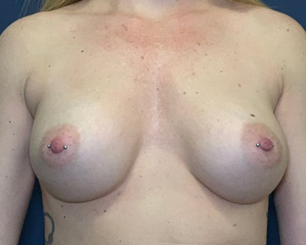 Breast Augmentation Gallery - Patient 51852603 - Image 2