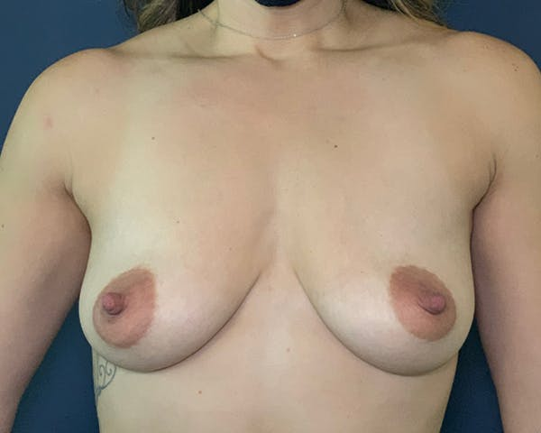 Breast Augmentation Gallery - Patient 51852604 - Image 1