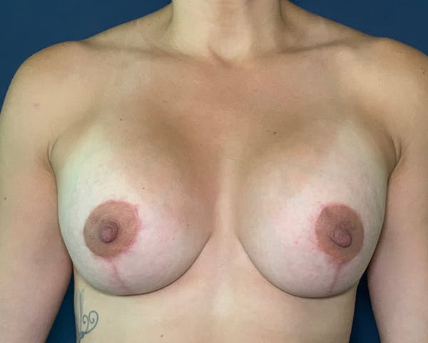 Breast Augmentation Gallery - Patient 51852604 - Image 2