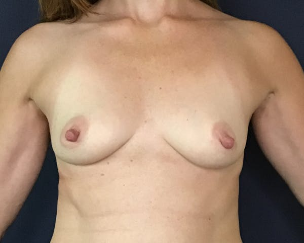 Breast Augmentation Gallery - Patient 51852605 - Image 1
