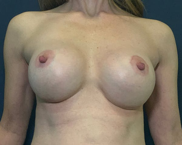 Breast Augmentation Gallery - Patient 51852605 - Image 2