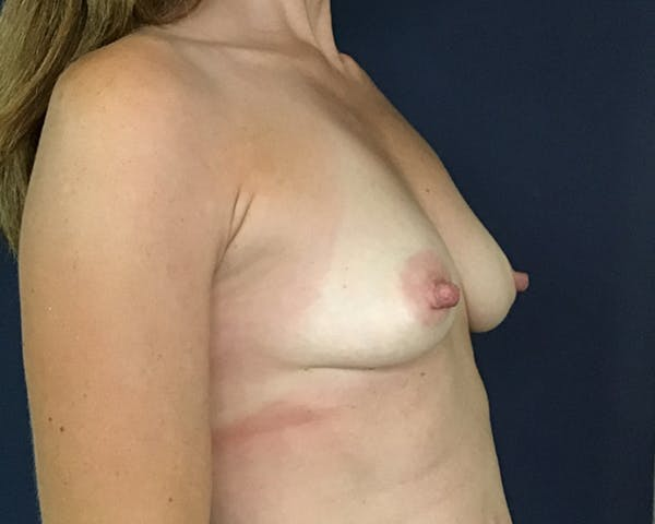 Breast Augmentation Gallery - Patient 51852605 - Image 3