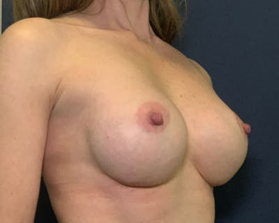 Breast Augmentation Gallery - Patient 51852605 - Image 4