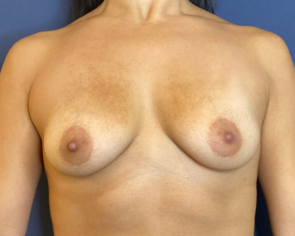 Breast Augmentation Gallery - Patient 51852606 - Image 1