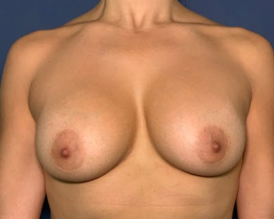 Breast Augmentation Gallery - Patient 51852606 - Image 2