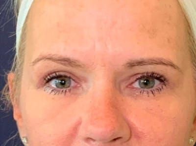 Blepharoplasty (Eyelid Surgery) Gallery - Patient 13733123 - Image 2
