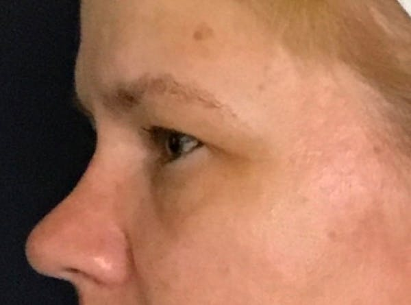 Blepharoplasty (Eyelid Surgery) Gallery - Patient 13733123 - Image 5