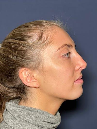 Rhinoplasty Gallery - Patient 52519318 - Image 1