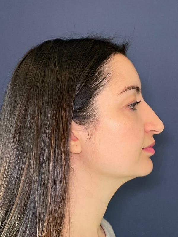Rhinoplasty Gallery - Patient 52519319 - Image 4