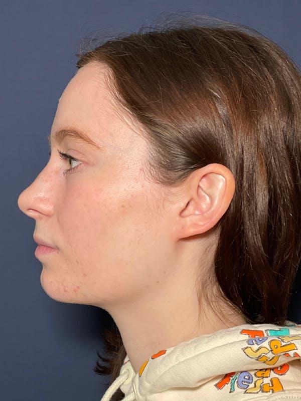 Septoplasty Gallery - Patient 52520115 - Image 3
