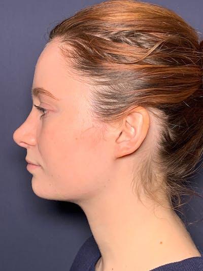 Septoplasty Gallery - Patient 52520115 - Image 4