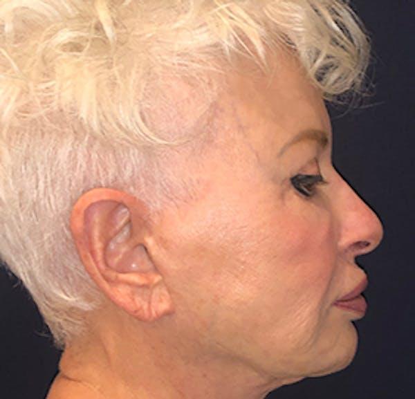 Facelift Gallery - Patient 53230537 - Image 3